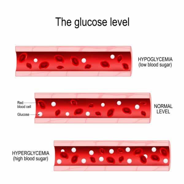 hyperglycaemia and hypoglycaemia
