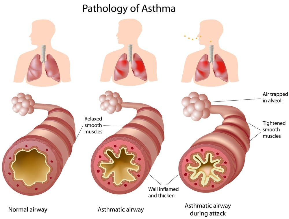 airways in asthma and asthma attack