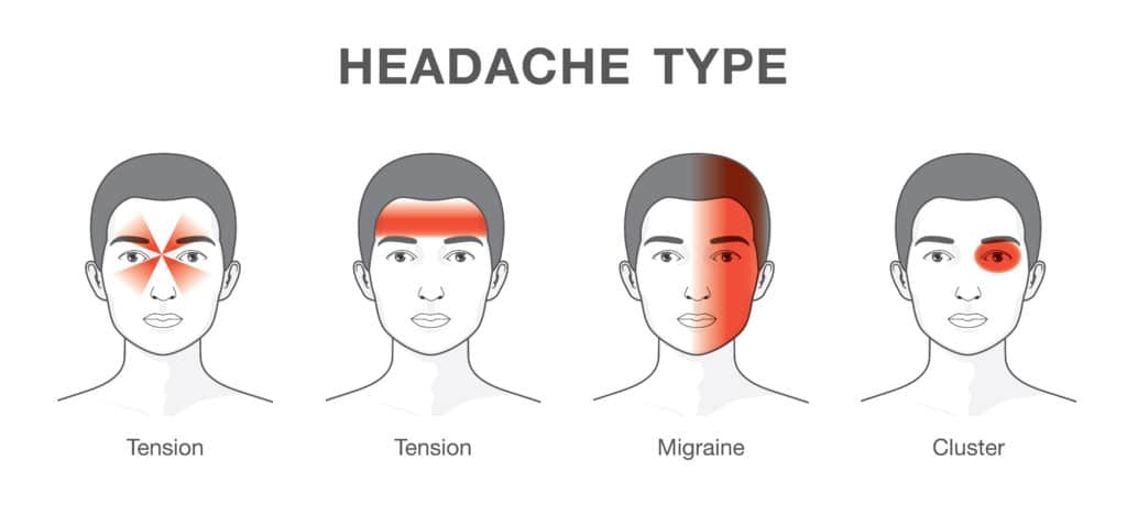 difference between headaches and migraine